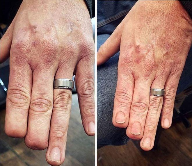 50 Przykładów Jak Tatuaż Zmienia Bliznę W Ozdobę